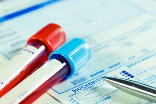 Vorläufige Fahrerlaubnisentziehung - Fahruntüchtigkeit bei Fehlen beweiskräftiger Blutprobe