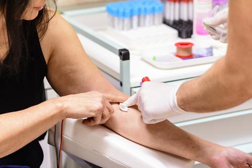 Freiwillige Abgabe einer Blutprobe – Verwertbarkeit bei fehlerhafter Belehrung?